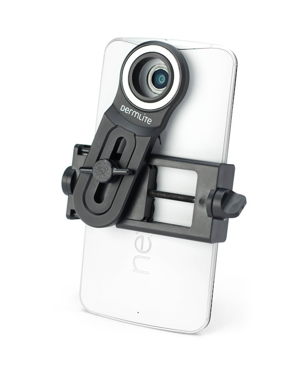 Universal Phone Adapter for DermLite image 0