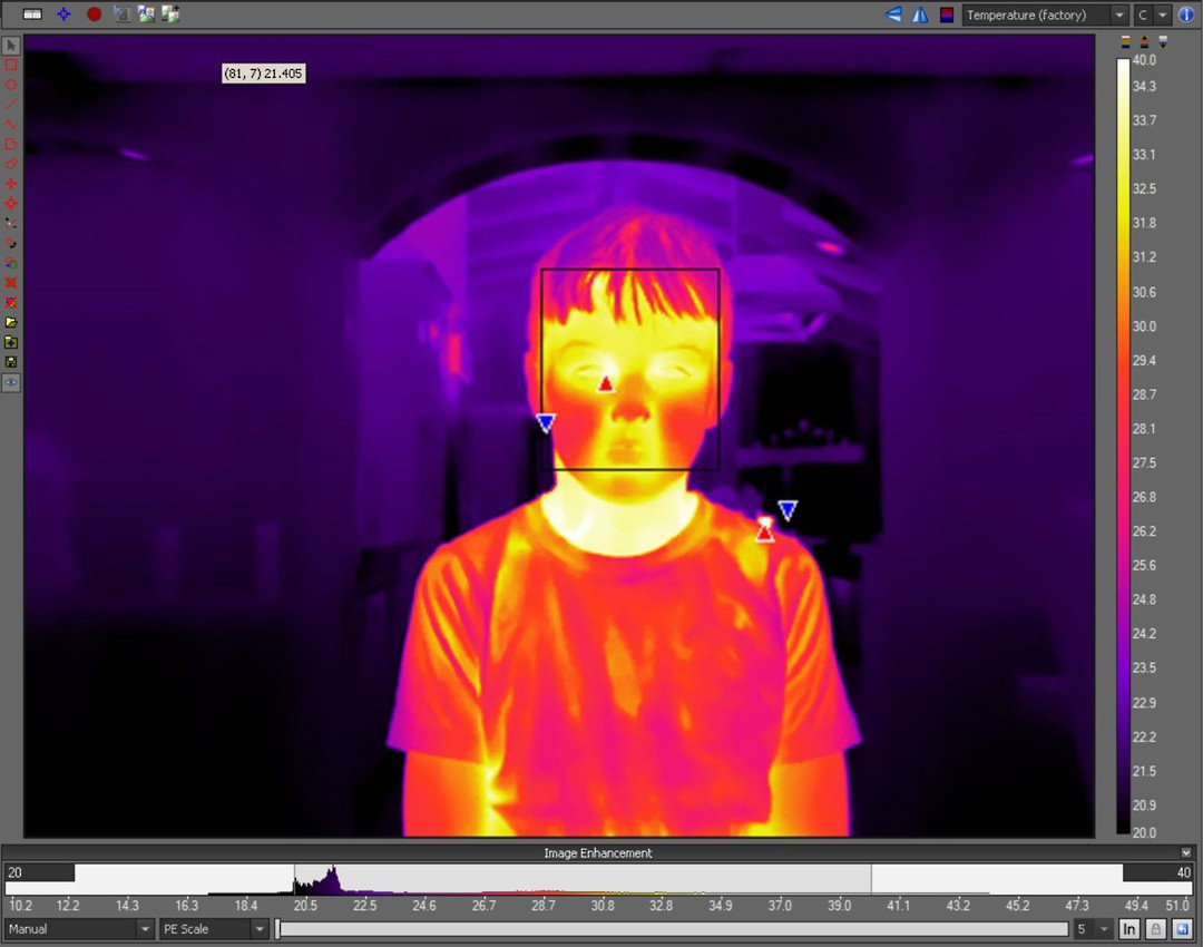 Flir Thermal Cameras for Elevated Body Temperature Screening (COVID-19) image 0