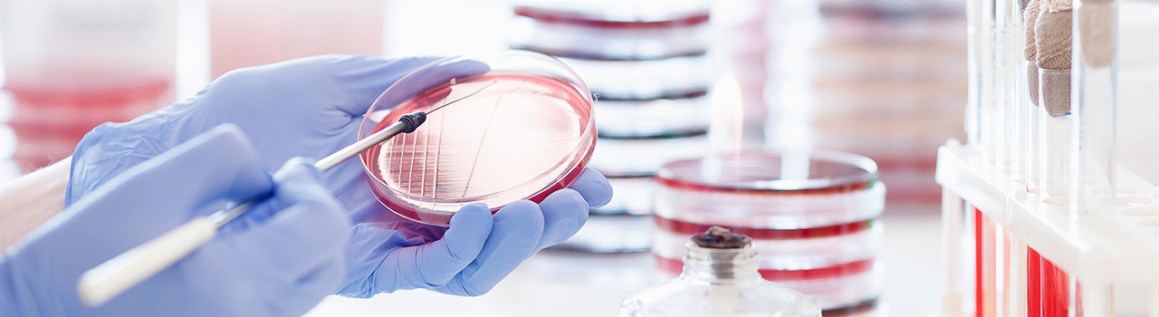 14 MicroBiology
