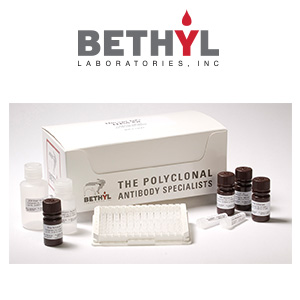 BETH ELISA Kits 300x300