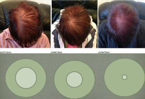hair(copy)