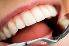periodontal-cleaning