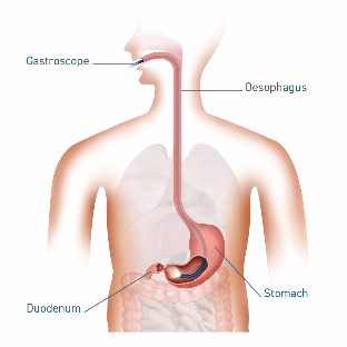 5039 GC Medical Illustrations 1080x1080px Gastroscopy-492