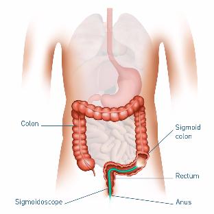 5039 GC Medical Illustrations 1080x1080px Sigmoidoscopy-460