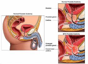 Prostate-855