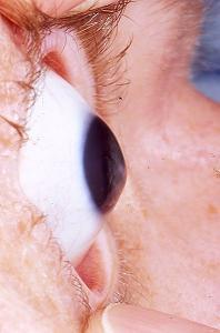 Keratoconus_eye_disorder.jpg