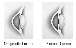 astigmatism_cornea.jpg
