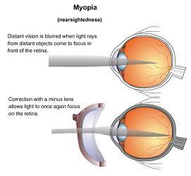 myopia_shortsightedness_eye_small.jpg