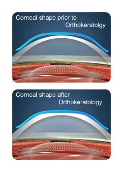 corneal_shaping.jpg