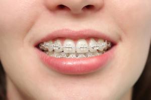 white braces-780-250