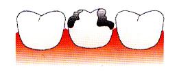 Heavily broken filled tooth
