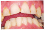 Old Fillings before-389