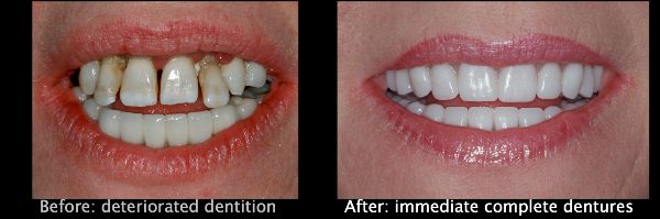 Immediate-Complete-Denture-Website-Images