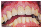 Front teeth large fillings afterPNG-324