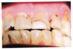 Front teeth large fillings before-956
