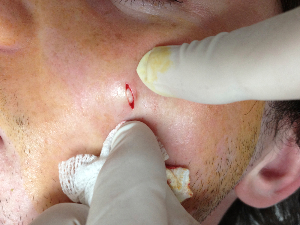 sebaceous cyst beig removed from face
