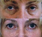 fat injection transfer under eyes,cheek