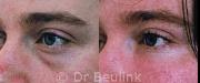fat injection transfer under eye, cheek