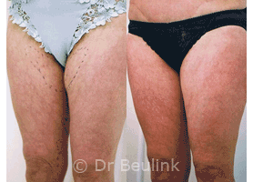 Belkyra? No, Lipolysis thighs Auckland Christchurch NZ