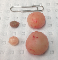 Multiple Sebaceous Cysts removed from scalp