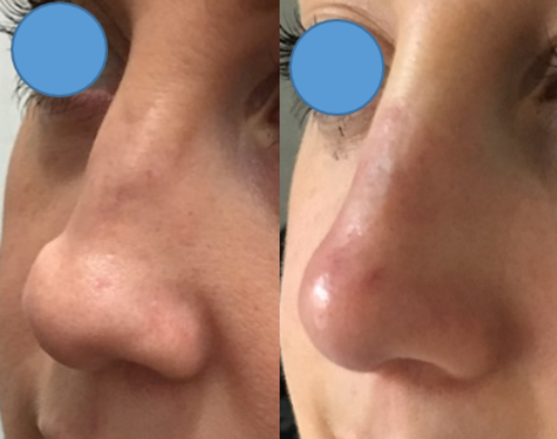 dermal filler broken nose Auckland Christchurch NZ