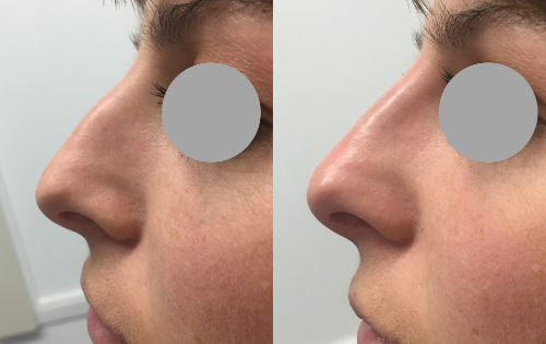 Dermal filler nose Auckland Christchurch NZ