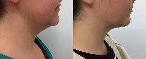 fat neck liposuction Auckland Christchurch NZ