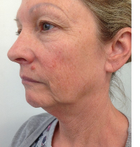 thread face and neck lift before