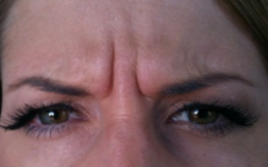 Botox frown before