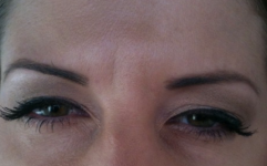 Botox frown: three days after treatment
