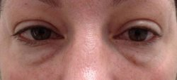 dark under eye circles treatment 1 before 250