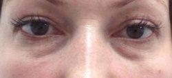 dark under eye circles treatment 2 before 250