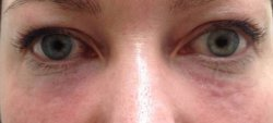 dark under eye circles treatment 3 after 250 1