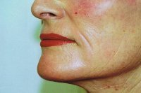 erbium_laser_resurfacing_side_view_lower_face_6_months_after_200.jpg