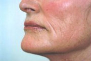 erbium laser resurfacing side view lower face 7 years after (180)