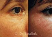 Fat injection transfer under eye,cheeks