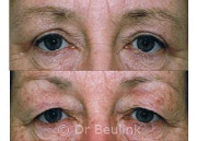 blepharoplasty upper eye lids