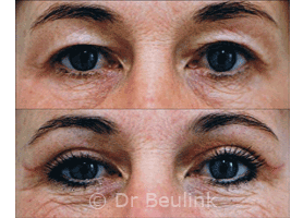 upper eyelid tuck (blepharoplasty):before & 2weeks after