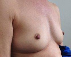 fat transfer breasts Auckland Christchurch NZ
