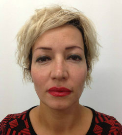 hollow cheeks tired look after restylane dermal filler 250