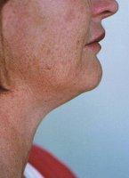 Fat neck lipodissolve injection Auckland Christchurch NZ
