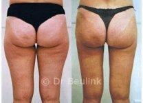 liposuctionm150_1.jpg