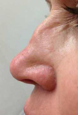 non surgical dermal filler nose job before NZ