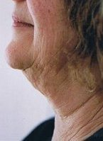 neck liposuction thread lift Auckland Christchurch NZ