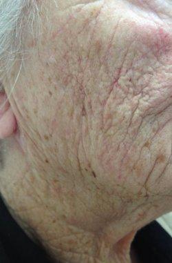 restylane dermal filler cheek after 250