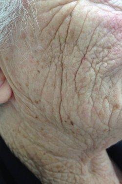restylane dermal filler cheek before 250