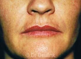 restylane_dermal_filler_lips_3_1.jpg
