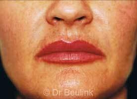 restylane_dermal_filler_lips_4_1.jpg