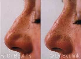 non surgical restylane nose job Auckland Christchurch NZ
