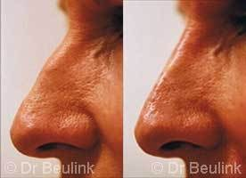 non surgical restylane rhinoplasty Auckland Christchurch NZ
